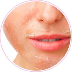Метилурацил может спровоцировать шелушение кожи