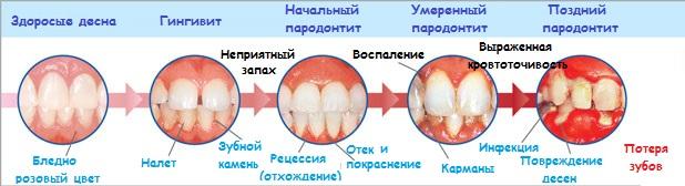 Как развиваются заболевания зубов и десен