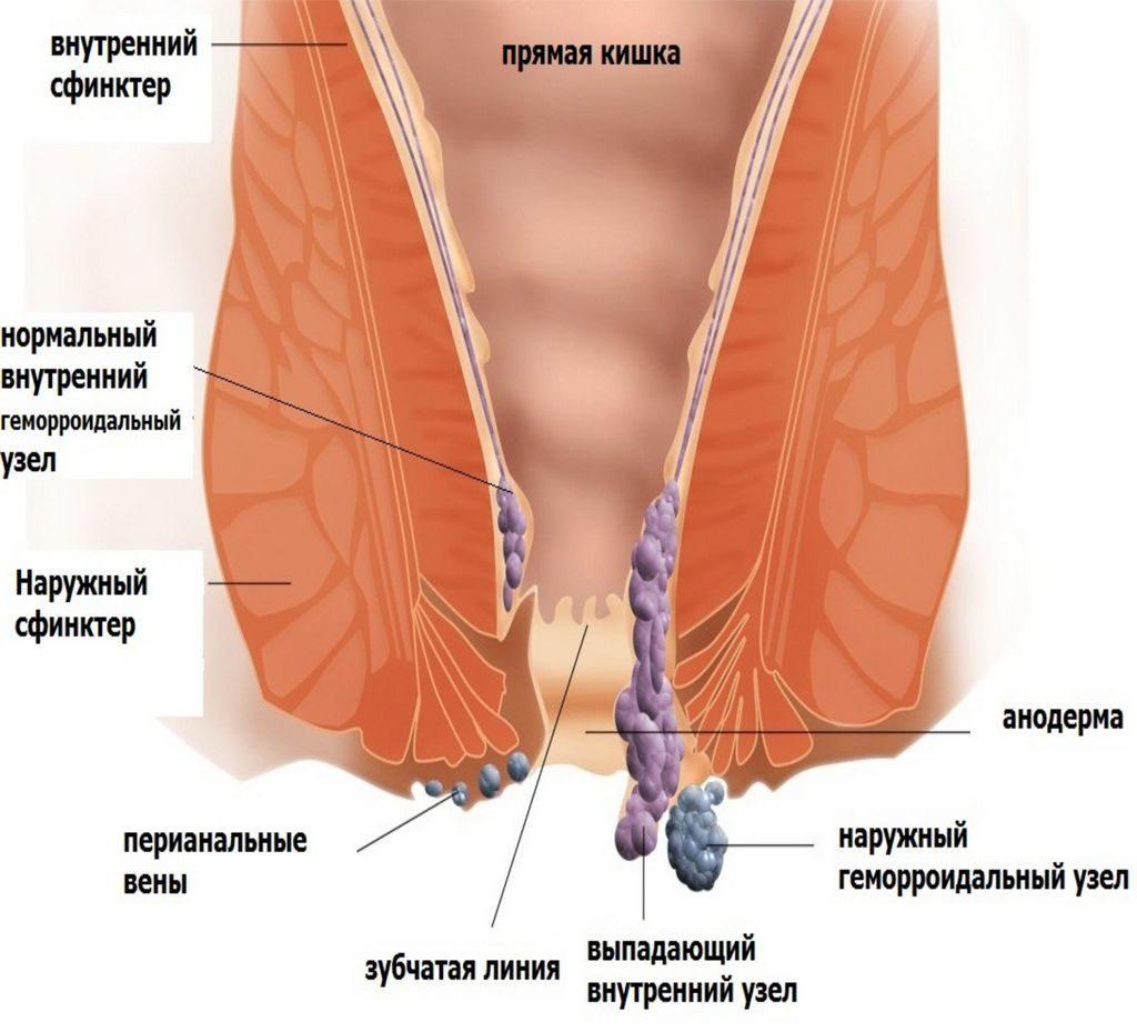 Препарат подавляет воспалительный процесс