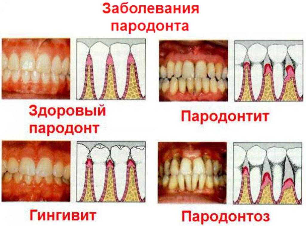 Пародонтит - показание к использованию геля