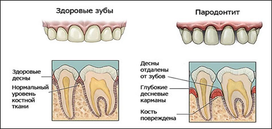 Препарат назначается при воспалительных патологиях ротовой полости