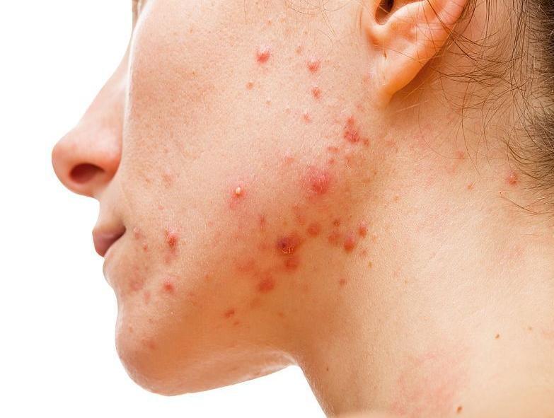 Средство используют в терапии угревой сыпь