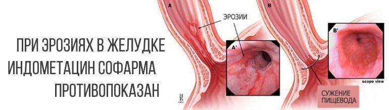 При язвенных поражения, эрозиях ЖКТ применять индометацин категорически воспрещается