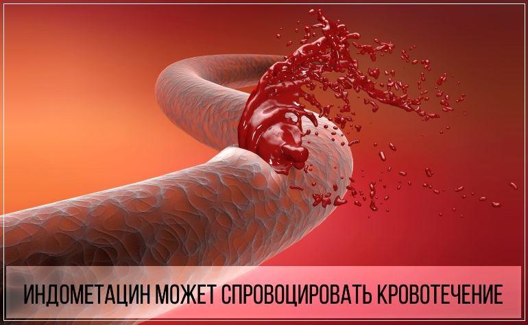 Индометацин может спровоцировать внутреннее кровотечение