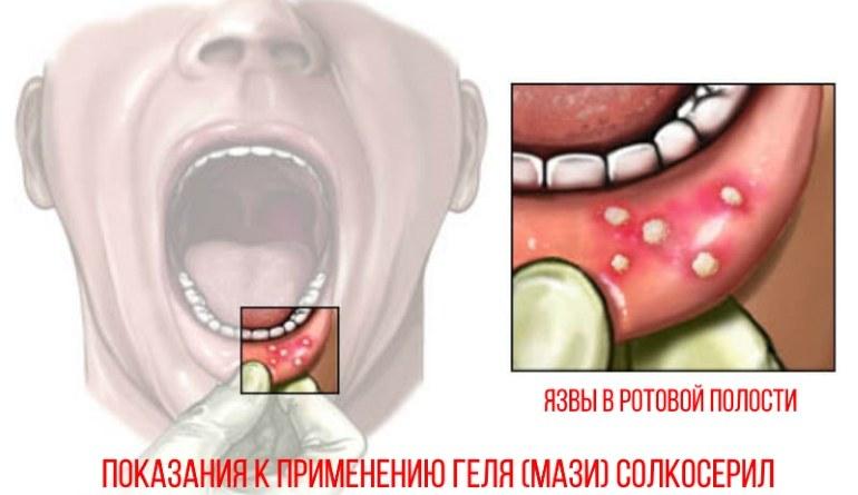 Мазь солкосерил показана при язвах в ротовой полости