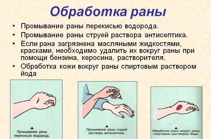 Раны необходимо предварительно обработать