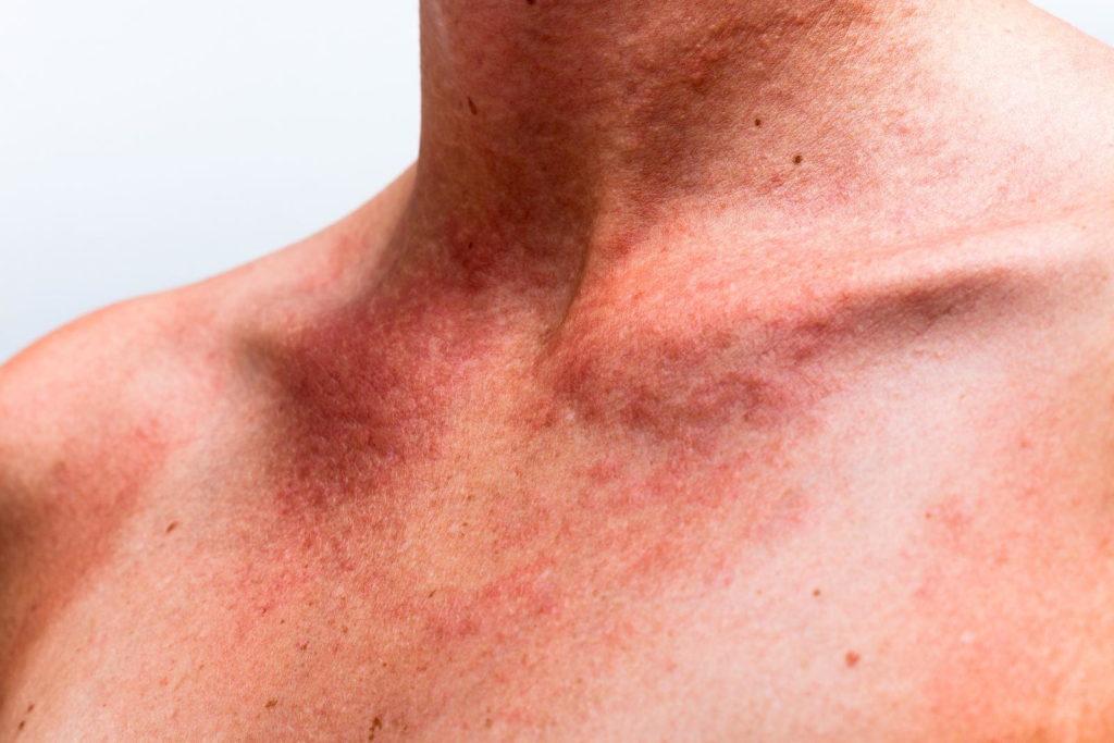 Крапивница - возможная аллергическая реакция на мазь