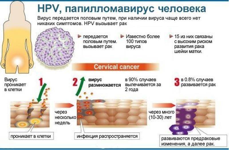 Папиллома - опухолевидное образование