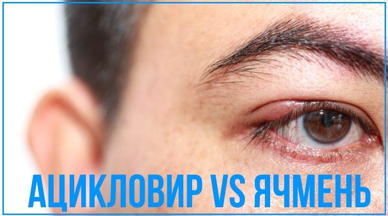 Ацикловир при ячмене на глазу: мазь и таблетки, эффективность ...