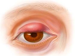 Перед началом лечения ячменя важно проконсультироваться с врачом
