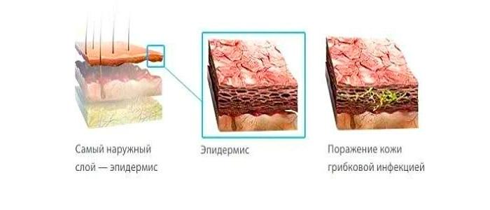 Клотримазол является противомикробным и противогрибковым средством