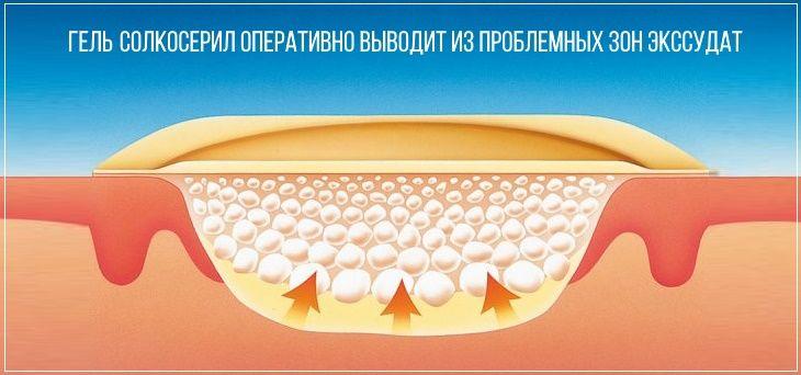 Гель солкосерил оперативно выводит из пораженного участка кожи экссудат