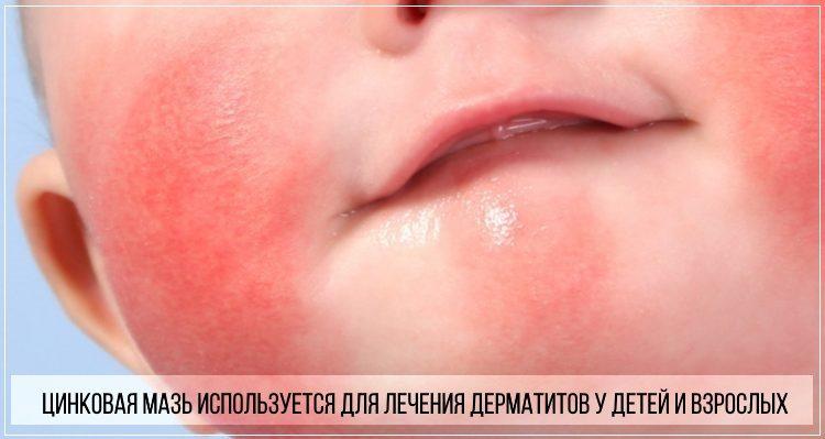 Цинковую мазь назначают для терапии дерматитов