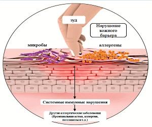 Причины появления атопического дерматита