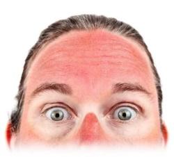 Мазь солкосерил назначают при ожогах и неглубоких поражениях кожи