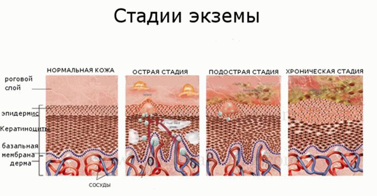 Стадии протекания экземы