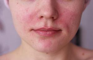 Покраснения - аллергическая реакция на мазь