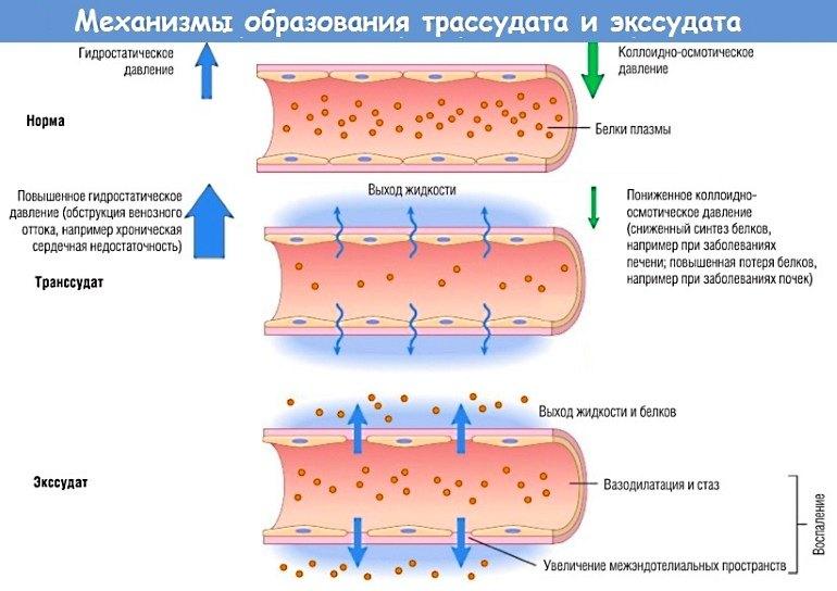 Цинковая мазь препятствует образованию и накоплению жидкости в тканях