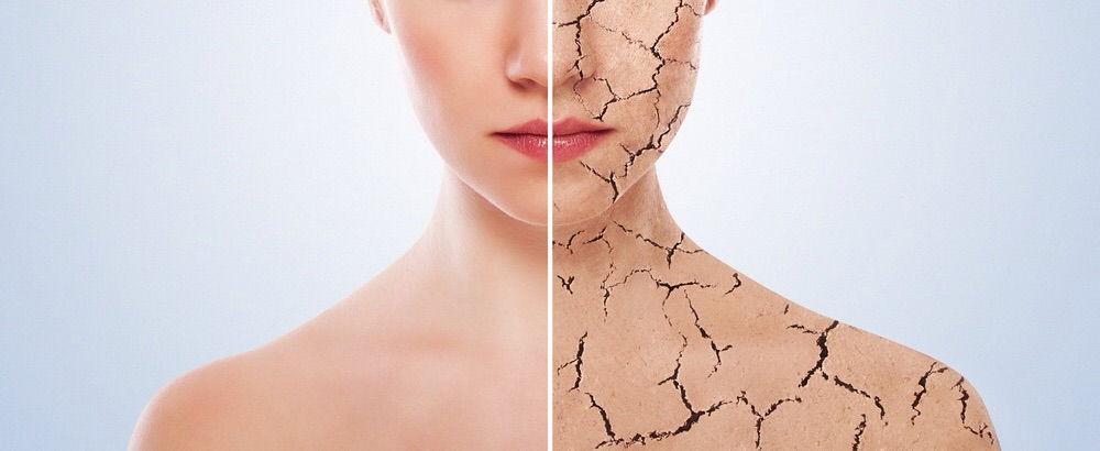 Мазь эффективна в лечении всех форм псориаза