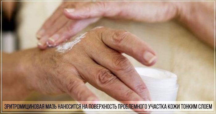 Как правильно использовать эритромициновую мазь