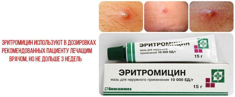 В каких дозах используют эритромициновую мазь