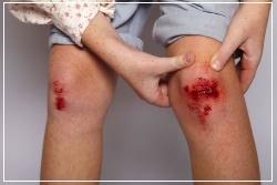 Троксевазин нео не наносят на открытые раны