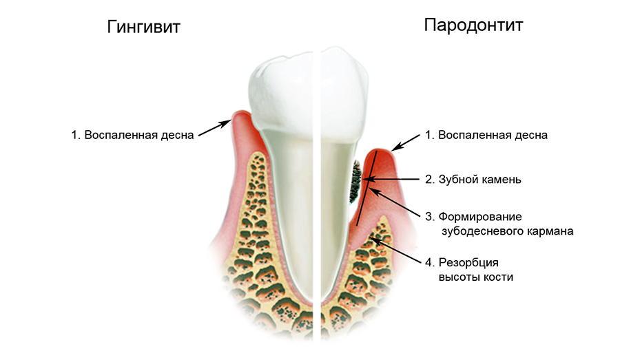 Пародонтит - показание к применению