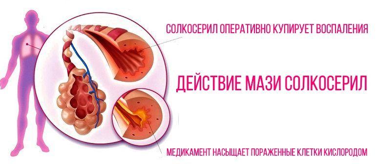 Механизм действия препарата Солкосерил