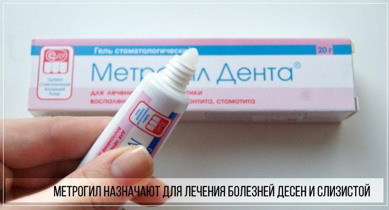 Препарат метрогил показан для лечения болезней, локализующихся в ротовой полости