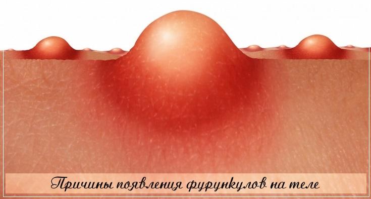 По каким причинам появляются фурункулы