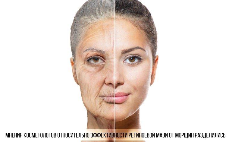 Мнение косметологов по поводу эффективности ретиноевой мази разделились