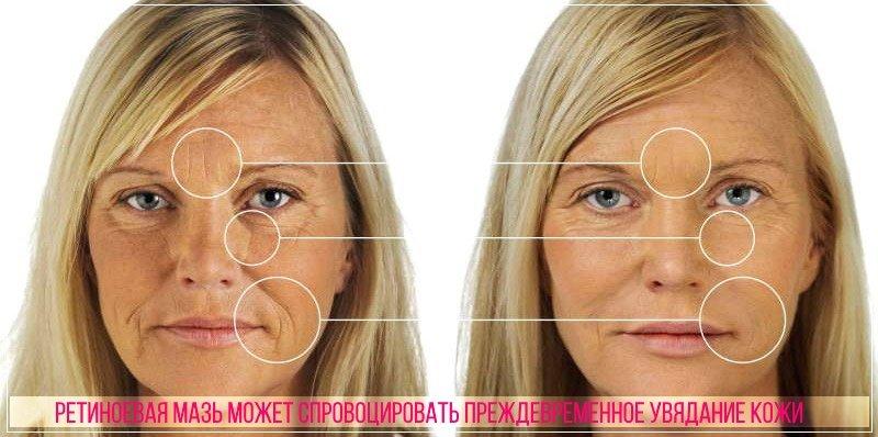 Ретиноевую мазь важно применять дозировано, под наблюдением косметолога или врача
