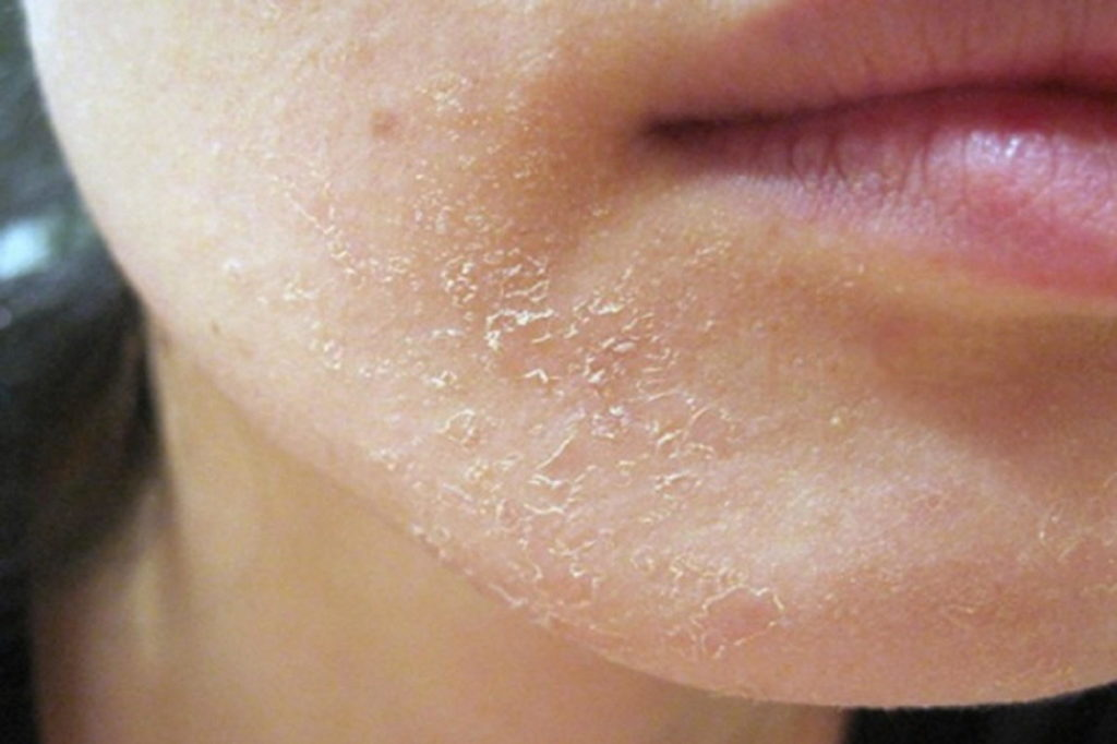 Сухость и шелушение кожи - побочный эффект
