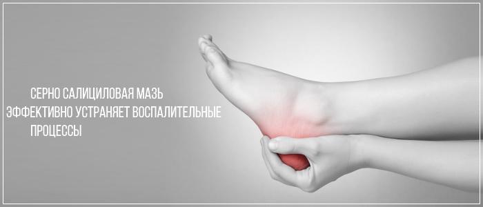 Серно салициловая мазь оперативно устраняет воспалительные процессы