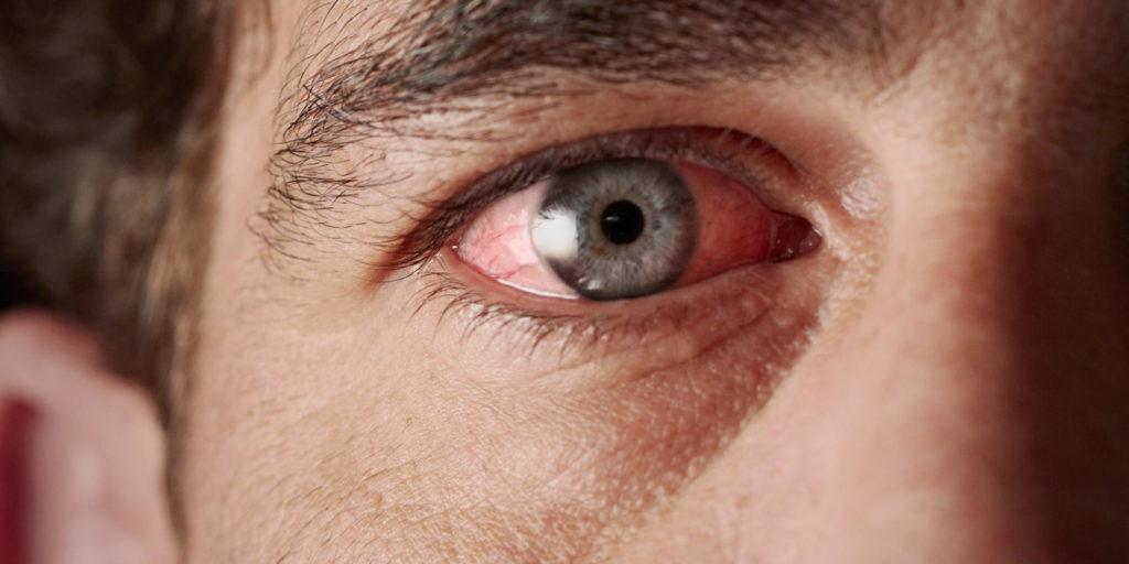 Покраснение глаз и слезотечение - аллергическая реакция на гель