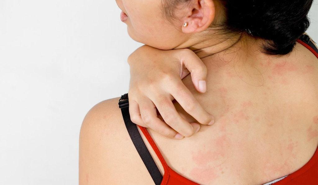 Кожная сыпь и зуд - местные аллергические реакции
