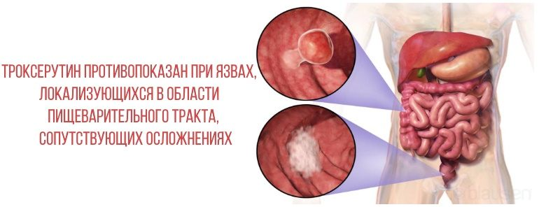 Троксерутин противопоказан при язвенных поражениях желудка и кишечника