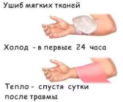 Ушибы мягких тканей и первая помощь