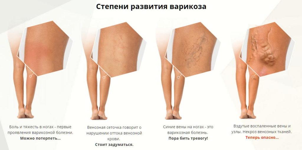 Средство применяют в лечении хронической венозной недостаточности