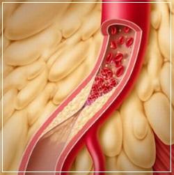 Троксерузин активизирует венозный кровоток