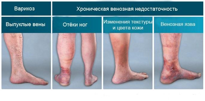 Особенности применения троксевазина