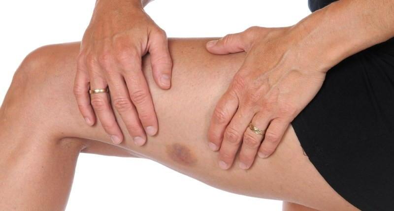 Лекарство применяют для устранения синяков и гематом