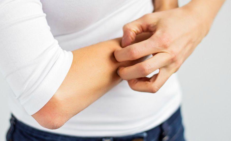 Кожный зуд - побочный эффект препарата