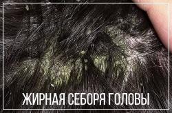 Себорея на голове