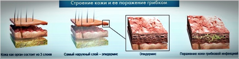 Серная мазь не устраняет первопричину себорейного дерматита