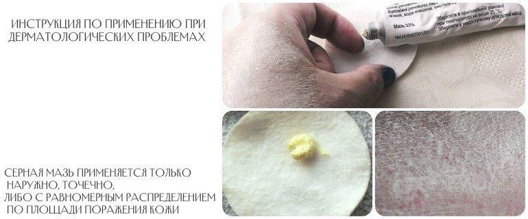 Рекомендации по применению серной мази при различных дерматологических заболеваниях