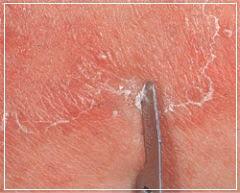 Серно-дегтярная мазь характеризируется выраженным противогрибковым действием