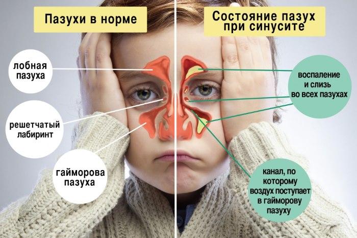 Показание к применению - синусит