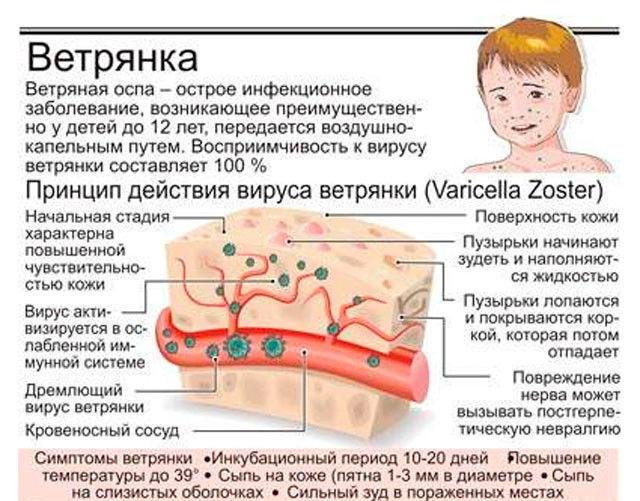Ветрянка - очень распространенное детское заболевания, вызываемое вирусом герпеса