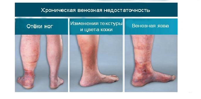 Мазь Индовазин показана при хронической венозной недостаточности нижних конечностей